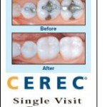 mansour-dds_same-day-crowns-cerec_rochester-hills