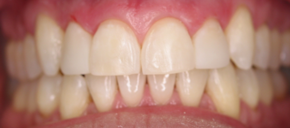 Before & After Invisalign and Cosmetic Bonding