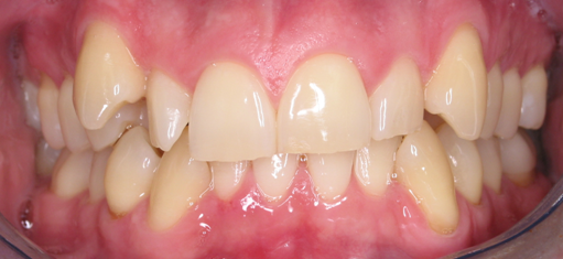 invisalign, cosmetic bonding, cosmetic dentistry, oakland country, metro detroit dentists