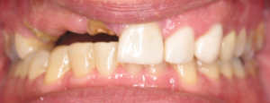 10 pre implants and veneers photos