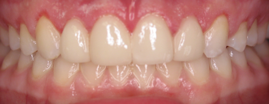 Before and After Orthodontics and Veneers