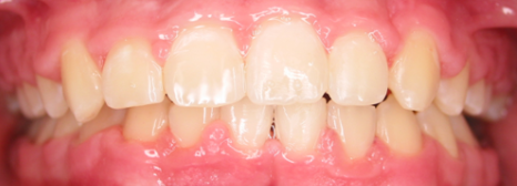 Before and After Braces and Orthodontics