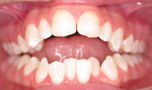5 before ortho and cosmetic bonding