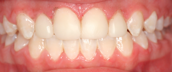 Before and After Orthodontics and Cosmetic Bonding