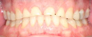 7 before ortho and crowns 6-11