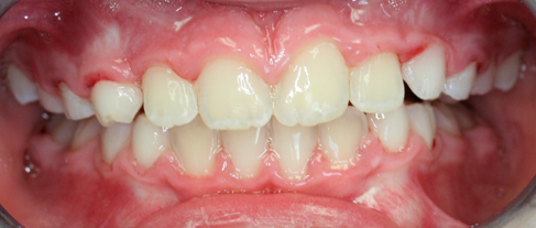Before and After Braces Orthodontics – Phase 1