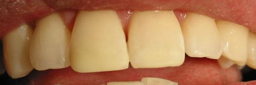 Incisal Fracture Before and After Repair