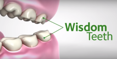 family dentist, pediatric dentist, rochester hills, oakland county, pain-free, wisdom teeth