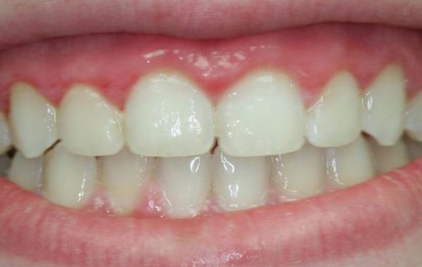 Before & After Gingivectomy