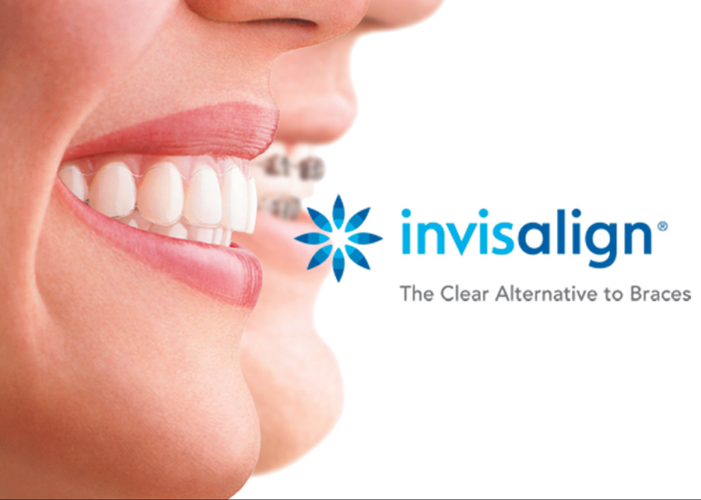 Invisalign, transform your smile, teeth straightening, rochester hills