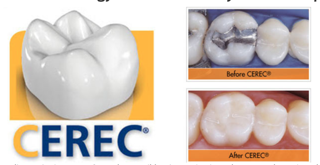 cerec crown, family dentist, one day crown, rochester hills